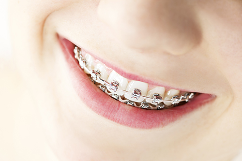 Braces in Northridge