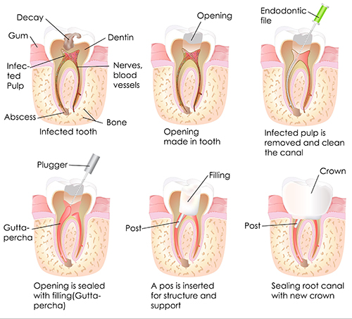 Root Canal Therapy in Northridge